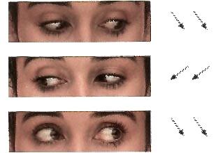 oculareslaterales